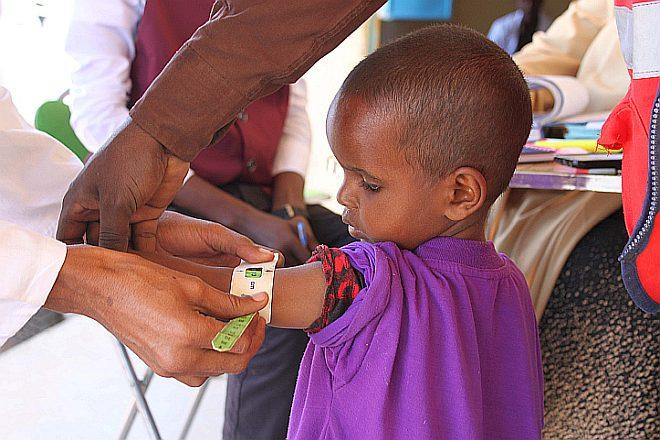 Oberarmmessung bei somalischem Kind