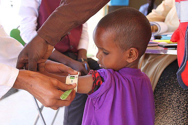 Oberarmmessung bei einem somalischen Kind